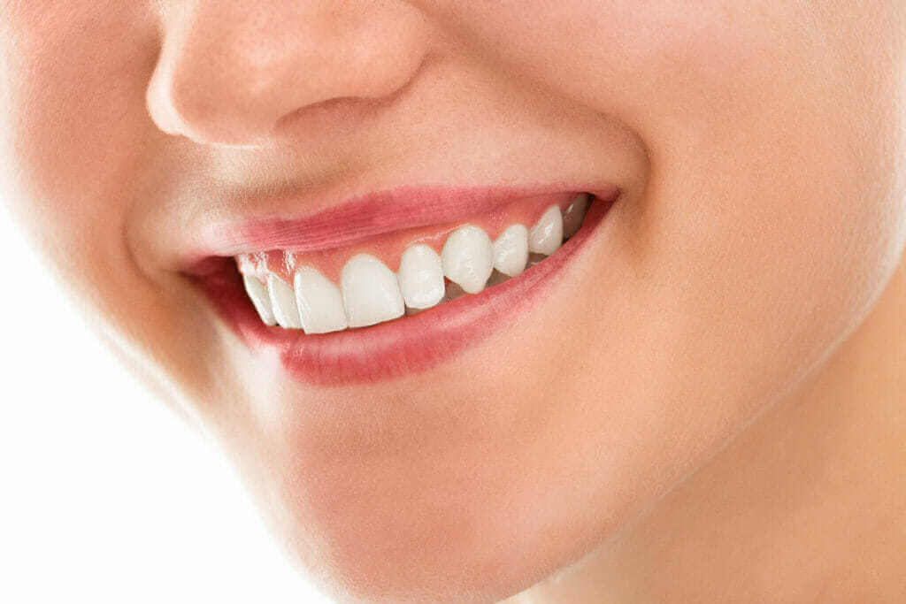 Slevové kupóny na zuby